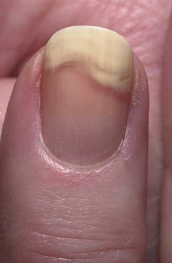 Псориаз ногтей описание лечение опыт форума Псориаз Давайте лечиться вместе