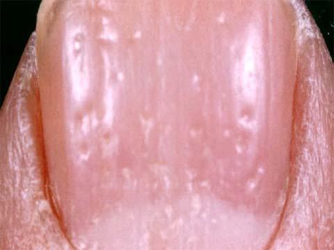 Чем можно вылечить запущенный грибок ногтей на ногах