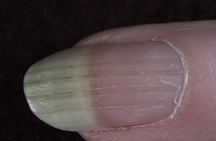 поперечная борозда на руке фото