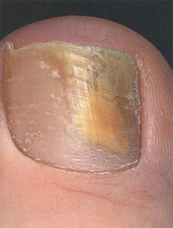 На ногти большого пальца грибок что делать