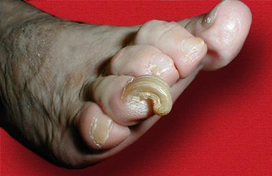 Изменение формы ногтей на ноге