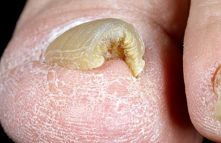 Воспаление пальца на руке у ногтя и как лечить