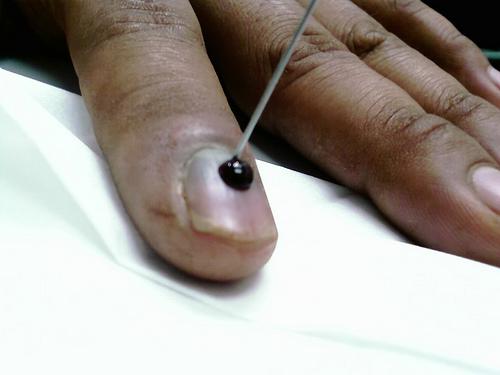 темнеют ногти у основания